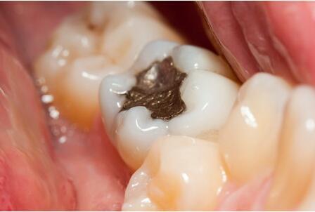 为什么补牙医生不给打麻药