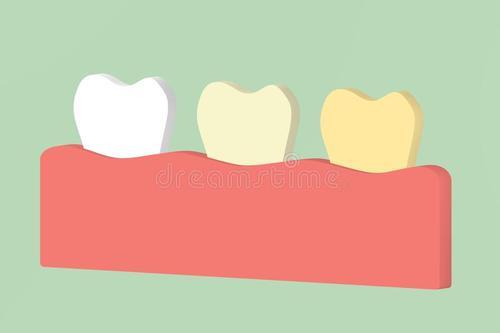 什么叫附着体义齿
