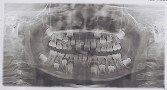 老年人牙周病的治疗