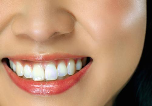 洁牙后牙齿有点酸痛是正常的