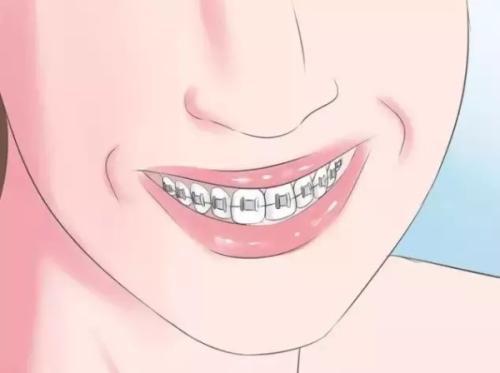 怎样预防口腔溃疡?