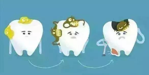 是成年人缺牙的主要原因