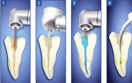 牙齿为什么要终身保健