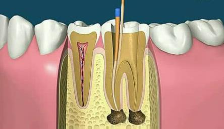 口腔颌面部为什么会容易产生炎症?