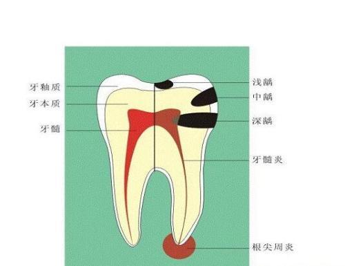 牙折的特点有哪些?