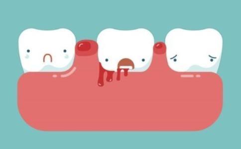 老年患者怎样注意口腔保健