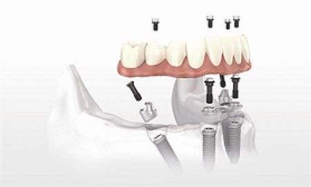 牙齿疾病对全身健康有什么影响