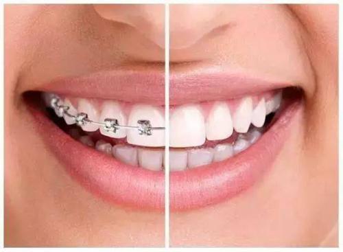 唇裂、腭裂整形治疗的最佳时期是什么