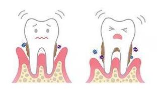 牙周疾病,牙齿鬆动